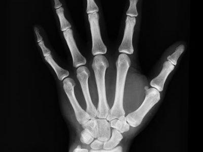 ¿De que están compuestos nuestros huesos?