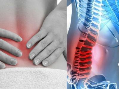 ¿Qué es la artrosis lumbar?