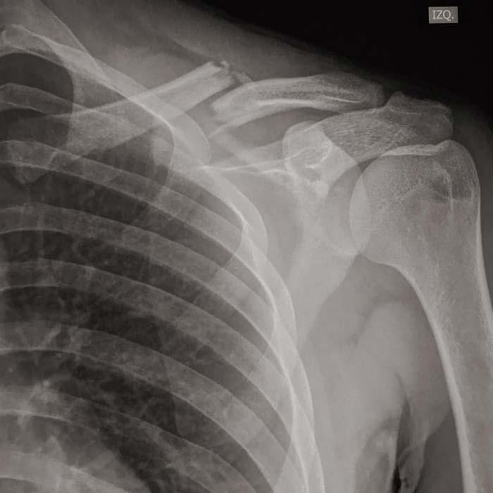 Radiografías de una fractura de hombro